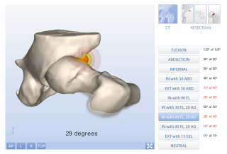 Viewing guide for 3D motion simulation report FAI