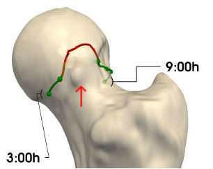 Evaluation of the magnitude and location of Cam deformity using 3D CT analysis