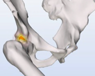Dynamic simulations for FAI - a cadaveric validation study