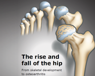 The rise and fall of the hip: from skeletal development to osteoarthritis